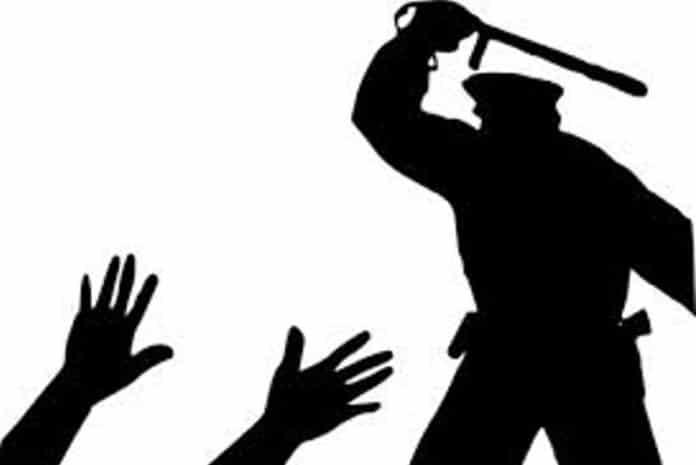 Brutalidade policial para intimidar manifestantes
