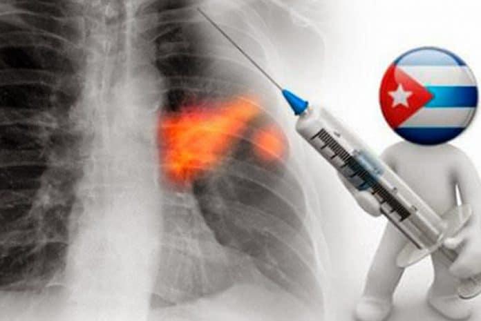 Cuba regista vacina contra o cancro do pulmão