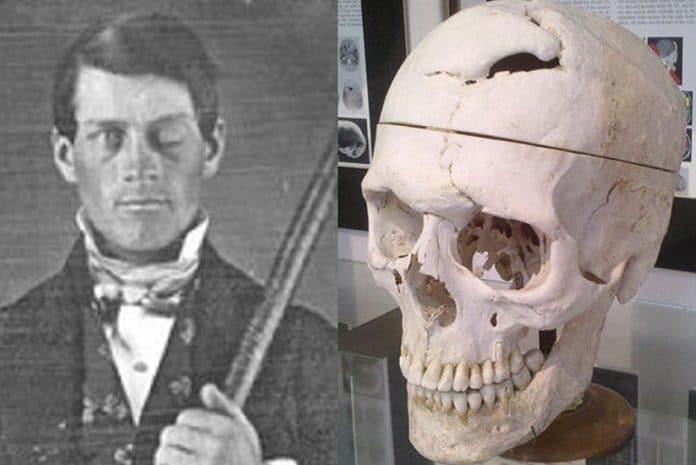 O crânio de Phineas Gage