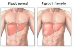 Inflamação no fígado