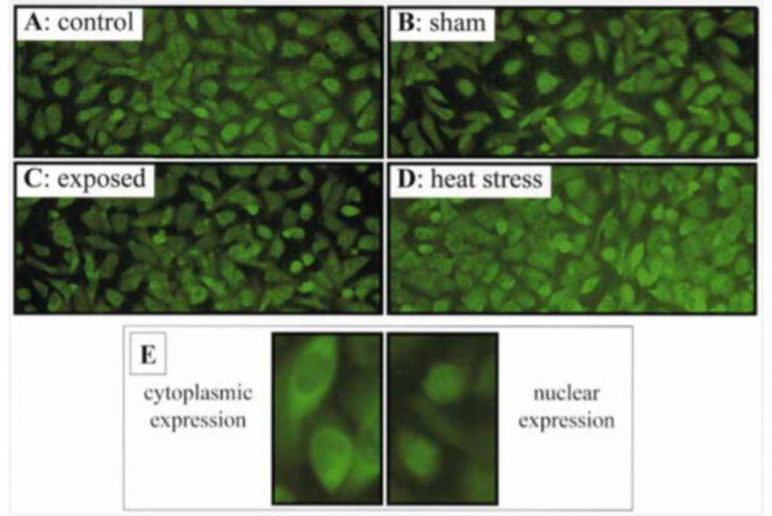 Estudo de Proteína hsp27