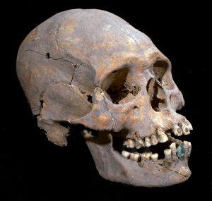 Deformação de crânio
